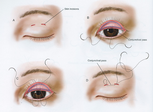 Incision Vs Suture Eyelid Surgery Asian 17