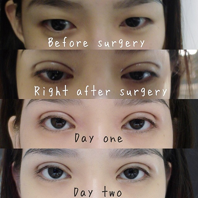 Korean Eyelid Surgery Recovery Time | Creativmakeup co
