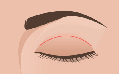Questions You Have About Double Eyelid Surgery (Suture Technique)