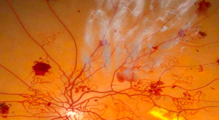 Proliferation of new blood vessels with scar tissue forming on the retina and in the vitreous