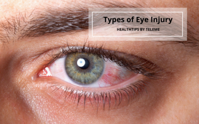 TYPES OF EYE INJURY
