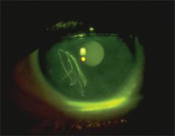corneal-abrasion