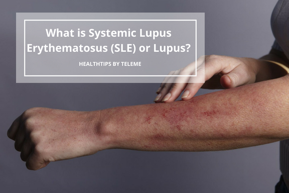 What is Systemic Lupus Erythematosus (SLE) or Lupus?