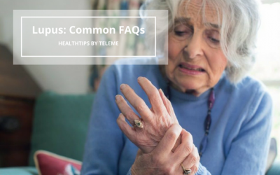 LUPUS: COMMON FAQS