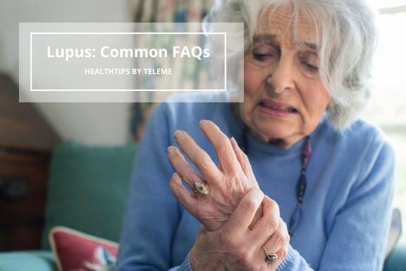 Lupus: Common FAQs