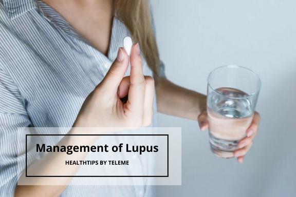 MANAGEMENT OF LUPUS