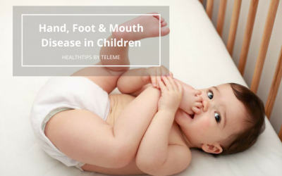Hand, Foot & Mouth Disease in Children