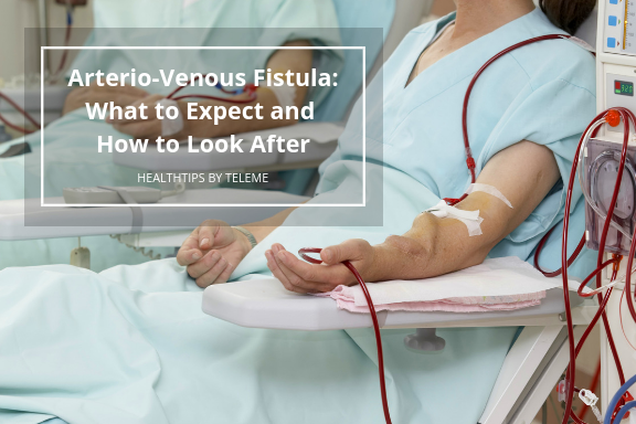 Arterio-Venous Fistula: What to Expect and How to Look After