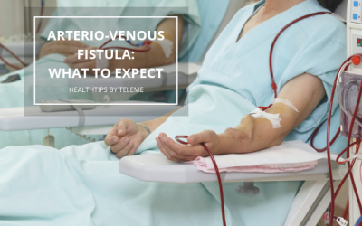 ARTERIO-VENOUS FISTULA: WHAT TO EXPECT