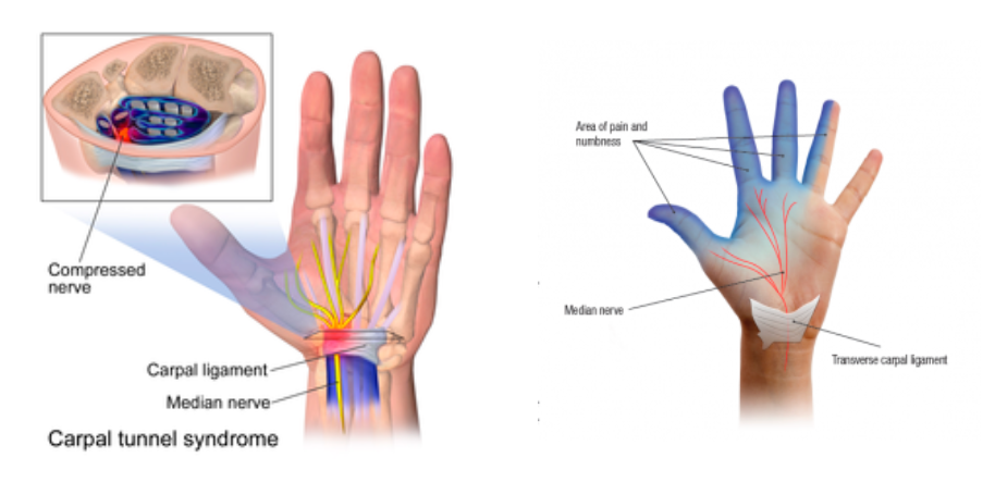 Carpal Tunnel Syndrome Healthtips By Teleme