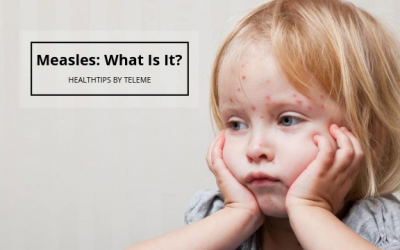 MEASLES: WHAT IS IT?