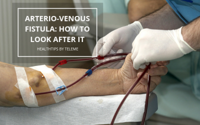 ARTERIO-VENOUS FISTULA: HOW TO LOOK AFTER IT