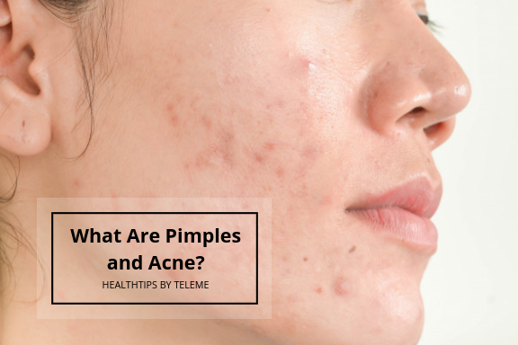 WHAT ARE PIMPLES AND ACNE?