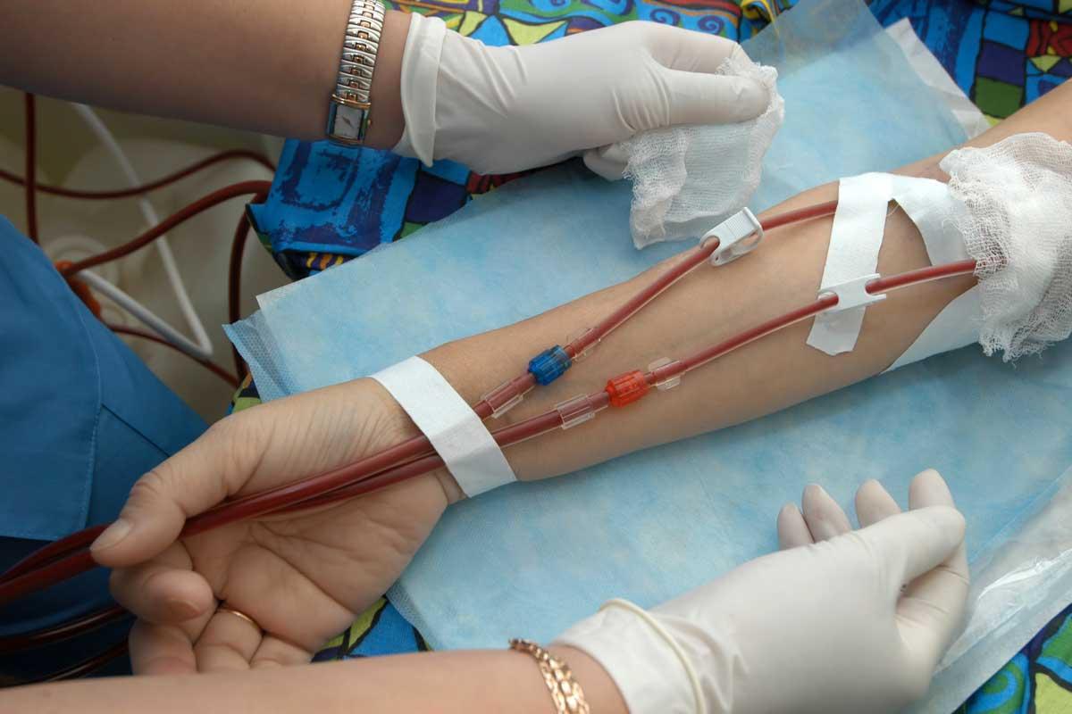 Arterio-Venous Fistula: What To Expect