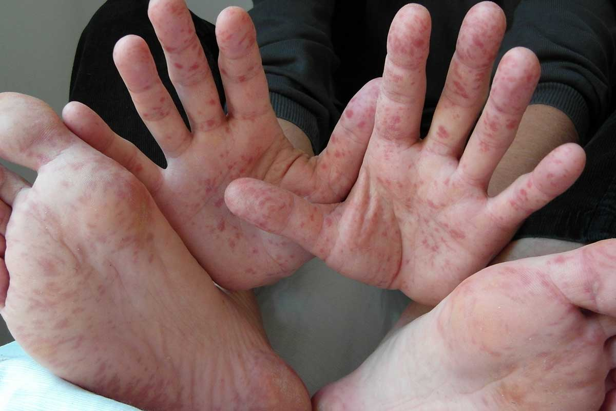 Hand, Foot and Mouth Disease In Children