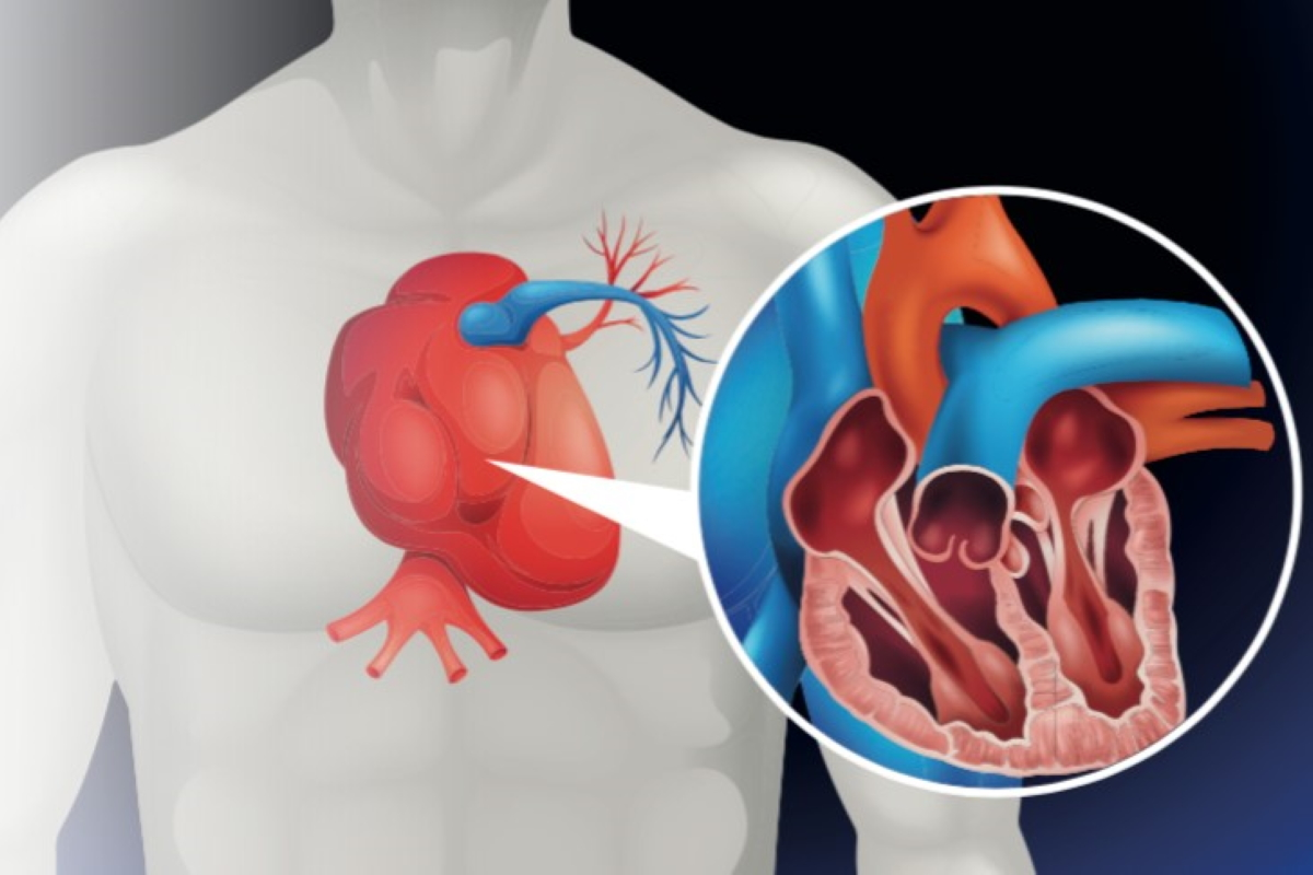 What to Expect from Angioplasty and Coronary Stenting