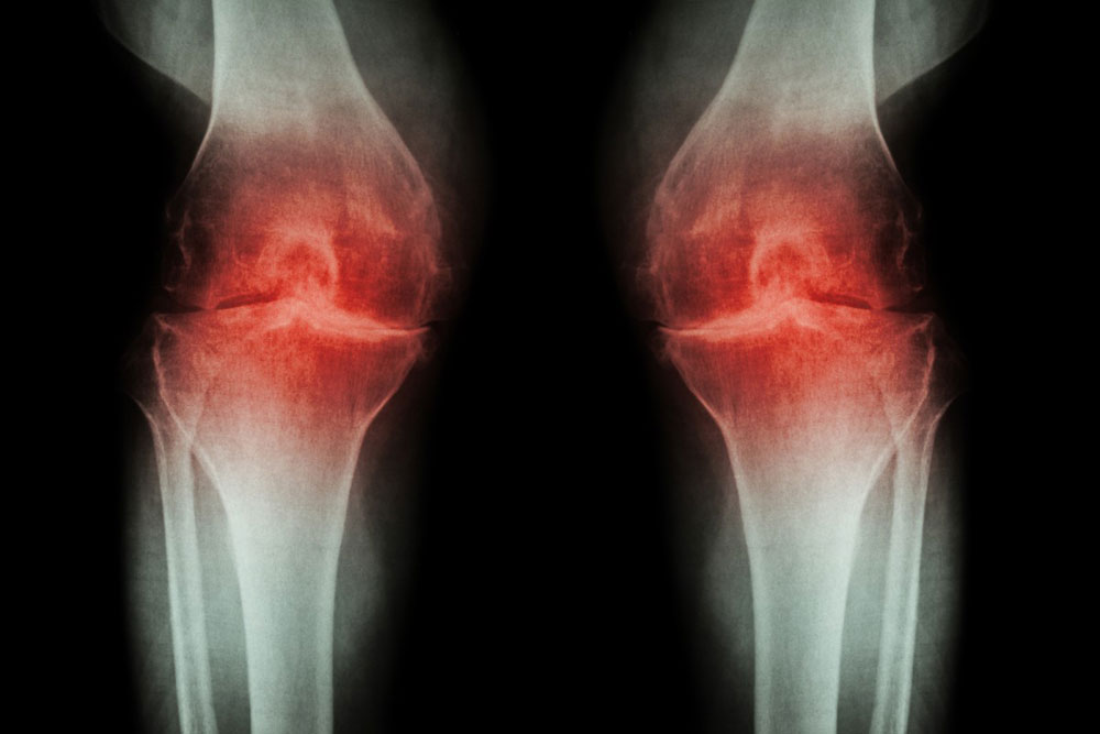 Injection Options for the Painful Joints with Osteoarthritis