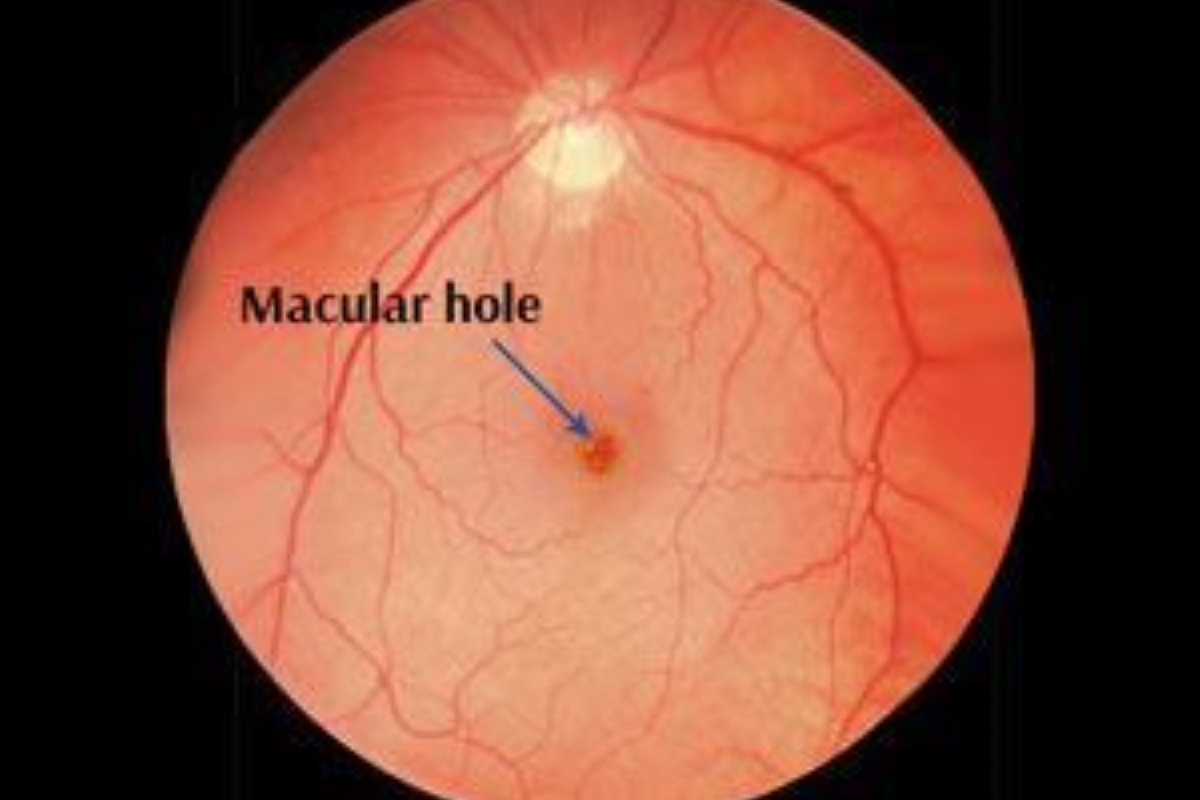 Macula Hole in the Retina