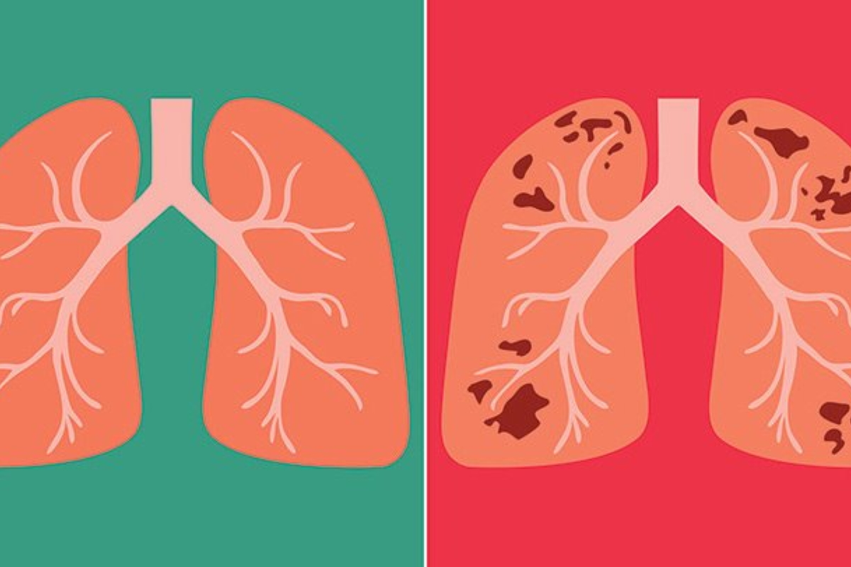 Tuberculosis (TB) of the Lung
