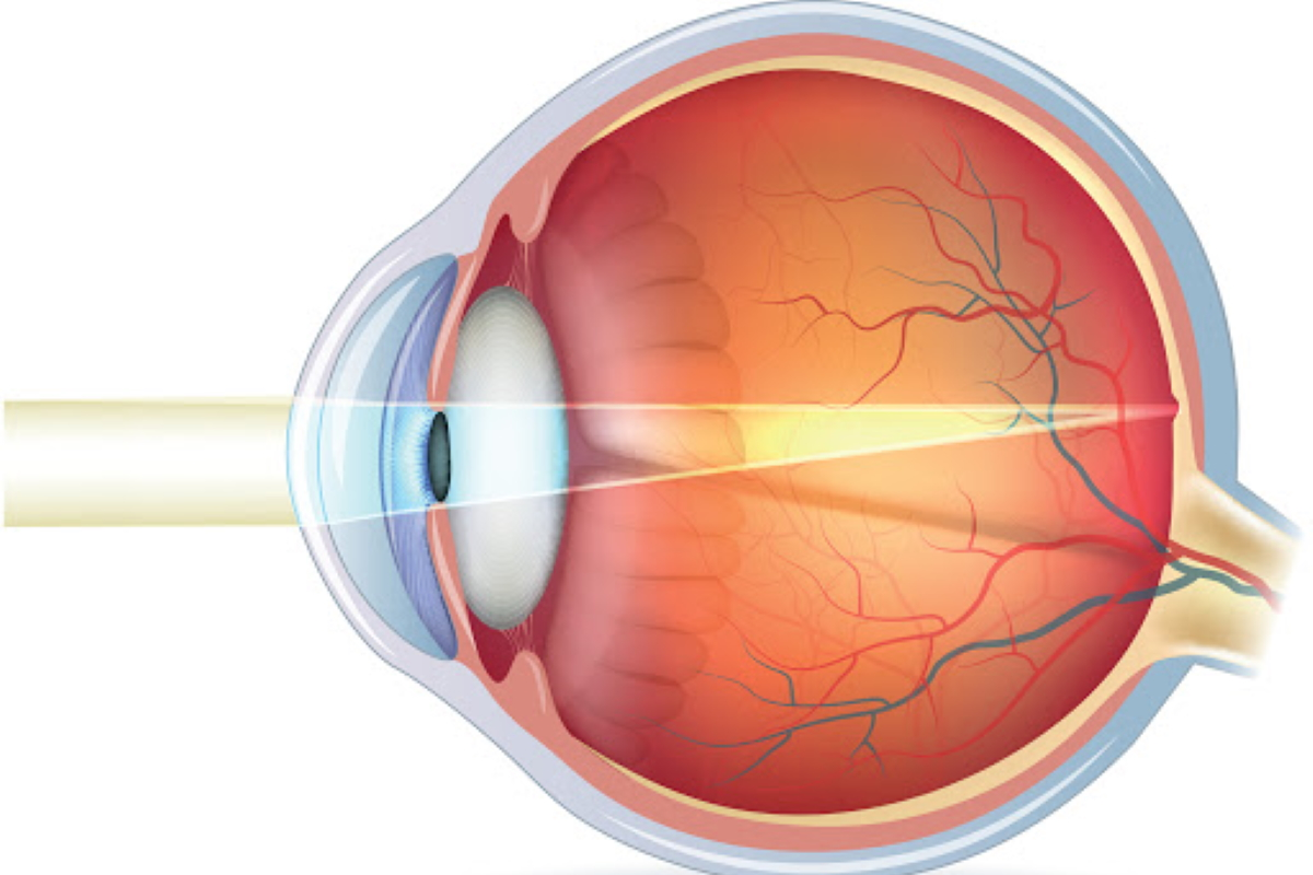 Refractive Errors in Adults