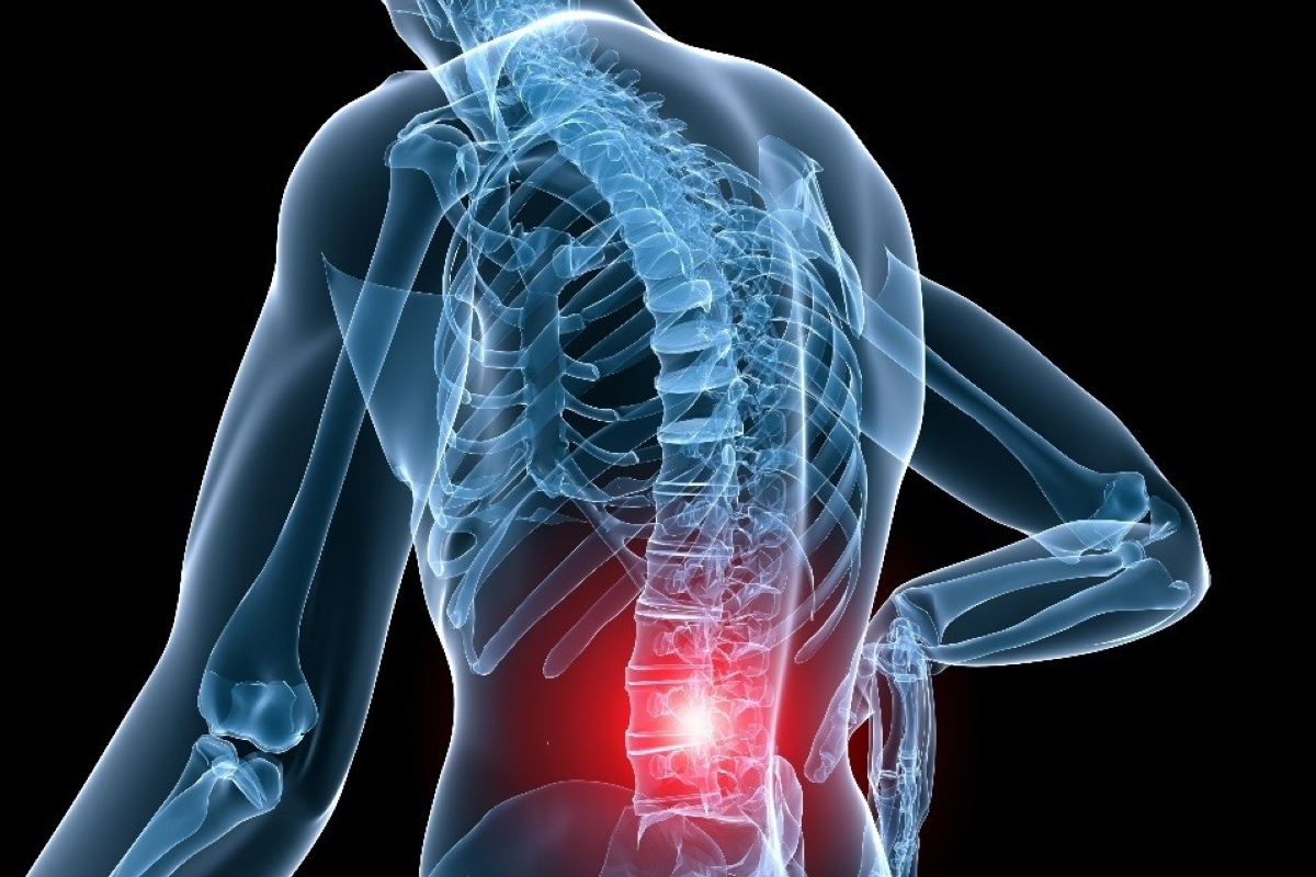 How to Prevent Back Injury