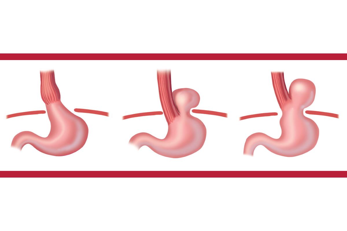 Pembedahan untuk Asid Refluks Gastroesophageal (GERD)