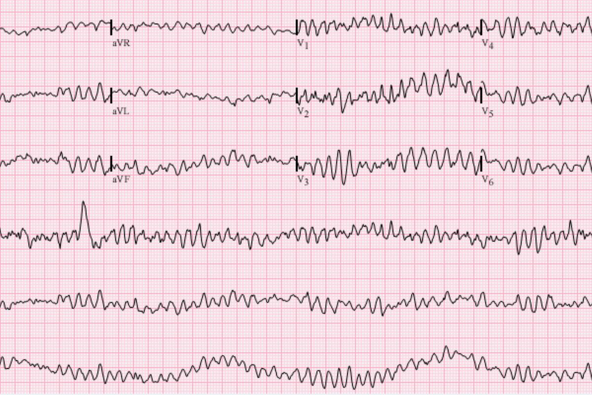 Abnormal Heart Rhythms (Arrhythmias)
