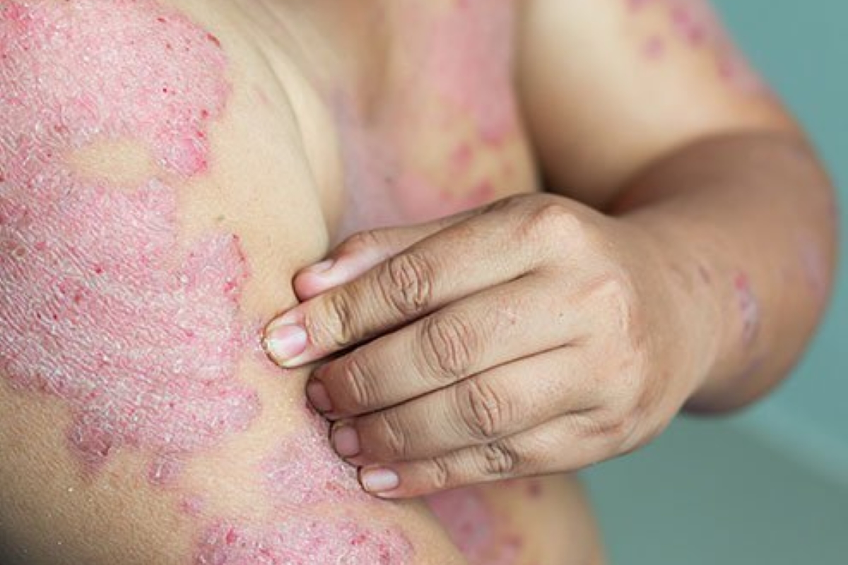 Treatment options for Psoriasis