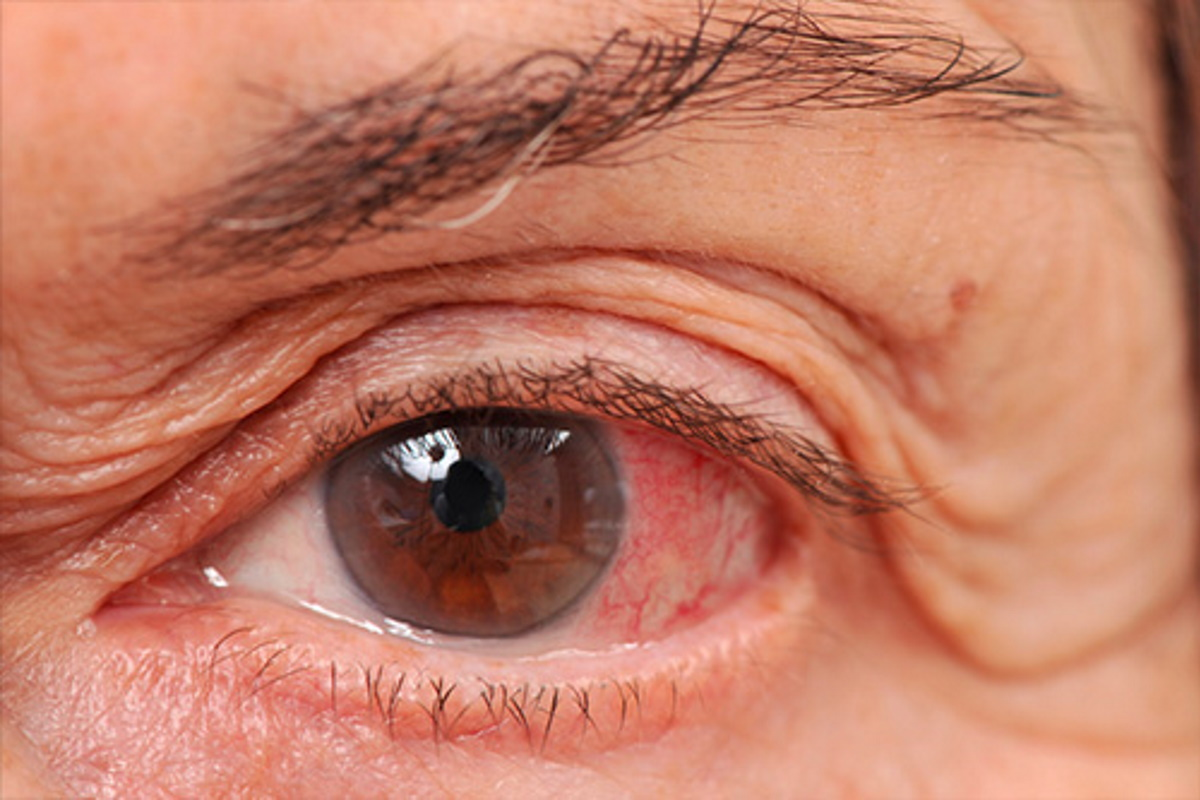 Open Angle Glaucoma (also known as Chronic Glaucoma)