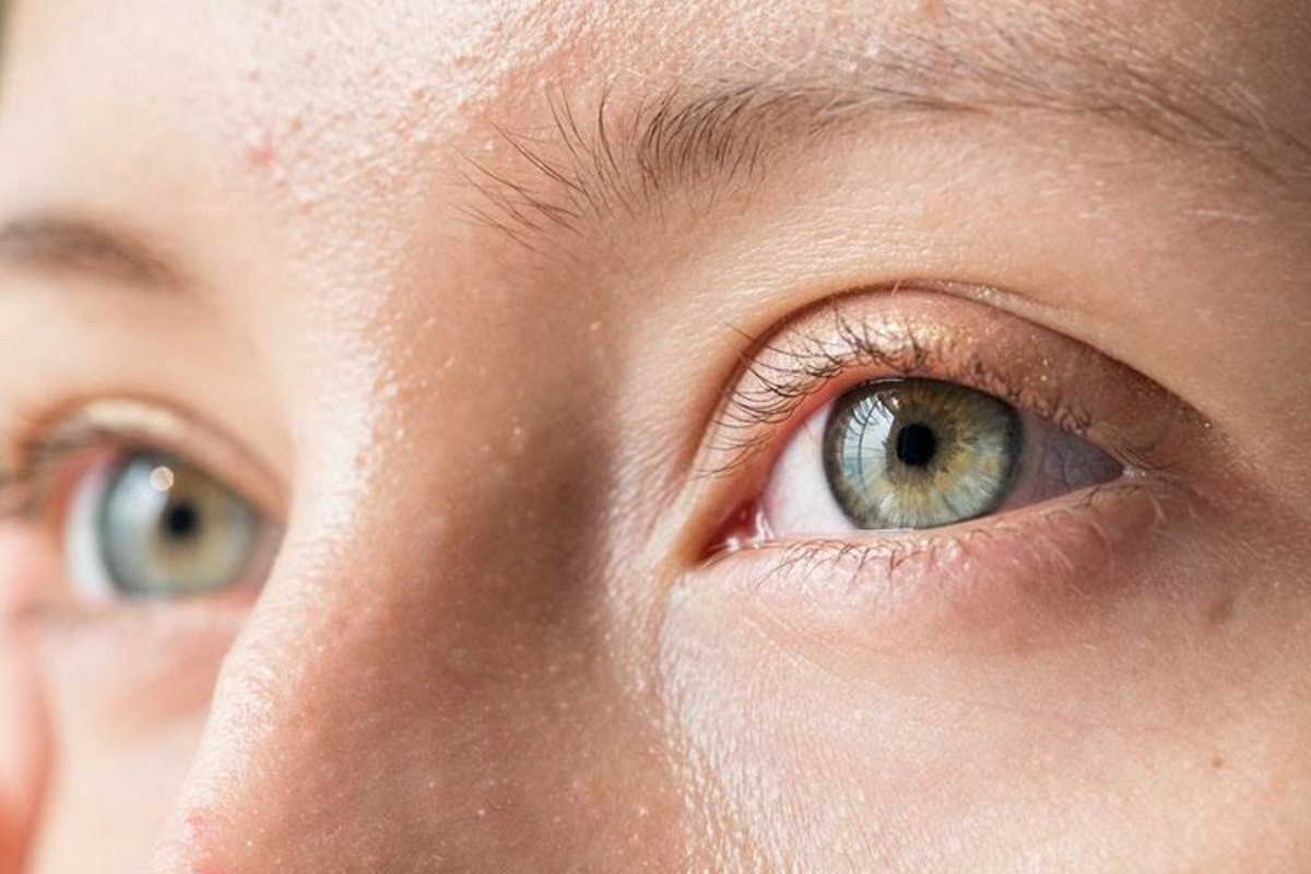 double-eyelid